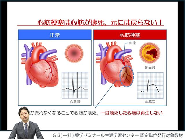 心臓の病気を知ろう!人に教えたくなる循環器疾患